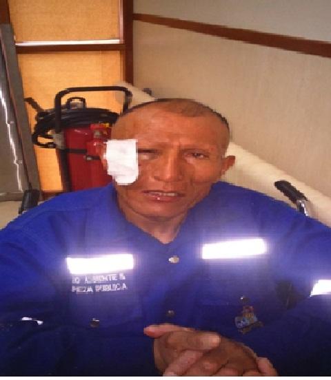 Atropellan a trabajador de la municipalidad de tarma for Municipalidad de tarma
